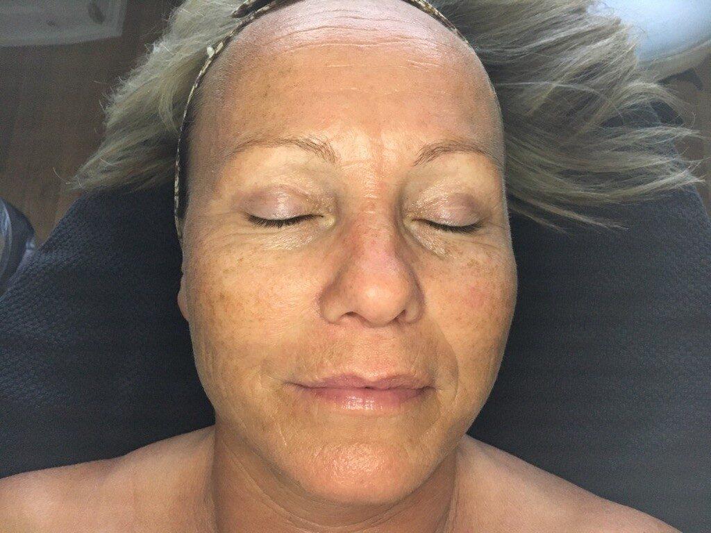 Pas på din hud efter sol og sommer!